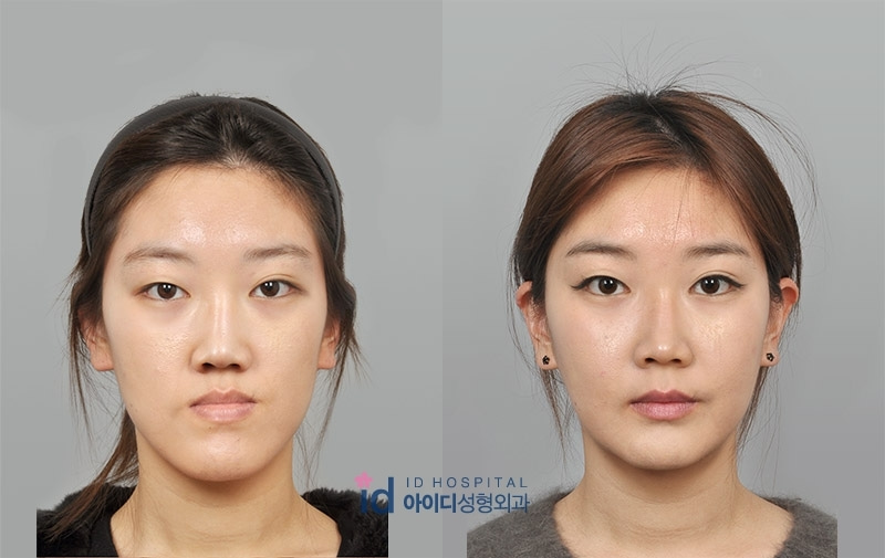ID美容外科、両顎手術、ルフォー