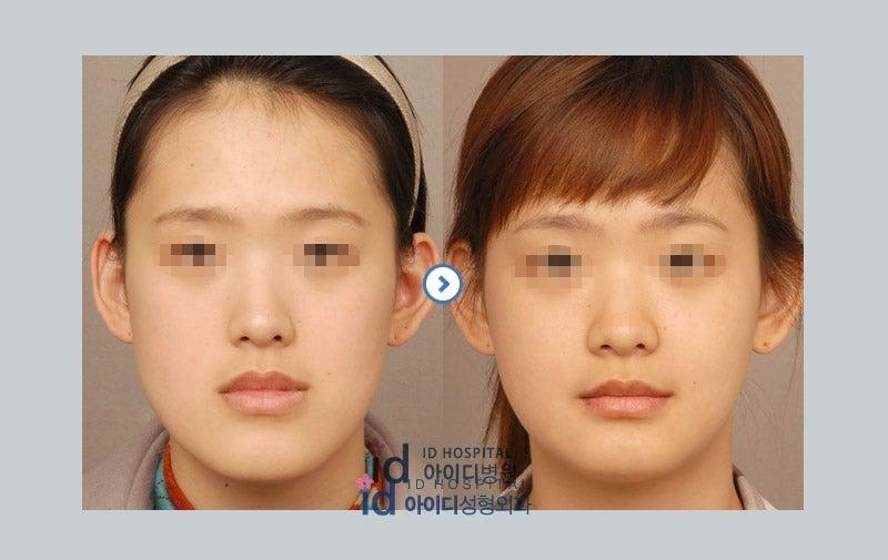 ID美容外科、両顎手術、ルフォー、面長