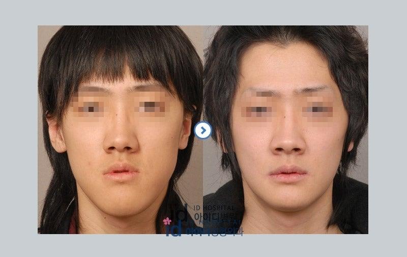 男性美容整形、ID美容外科、韓国輪郭、面長