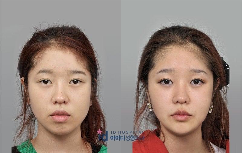 ID美容外科、面長、小顔、両顎手術