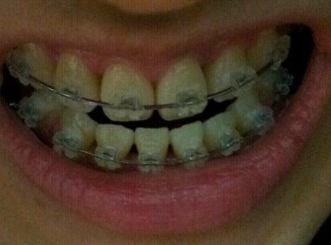 ID美容外科、しゃくれ顎、歯列矯正