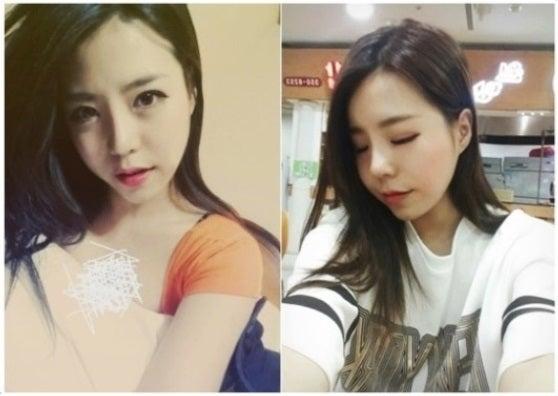 韓国美容整形、ID美容外科、鼻整形、目整形