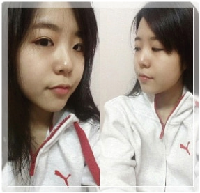 ID美容外科、目整形、鼻整形、輪郭