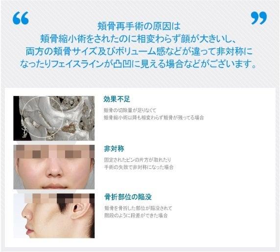 ID美容外科、頬骨手術、輪郭再手術