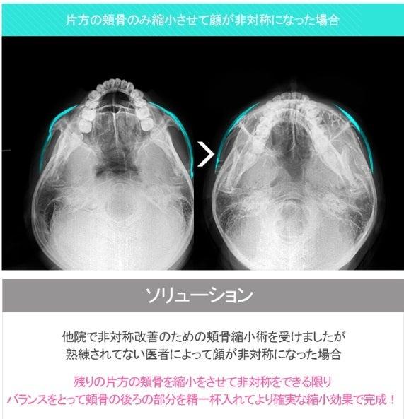 韓国輪郭整形、再手術、頬骨削り
