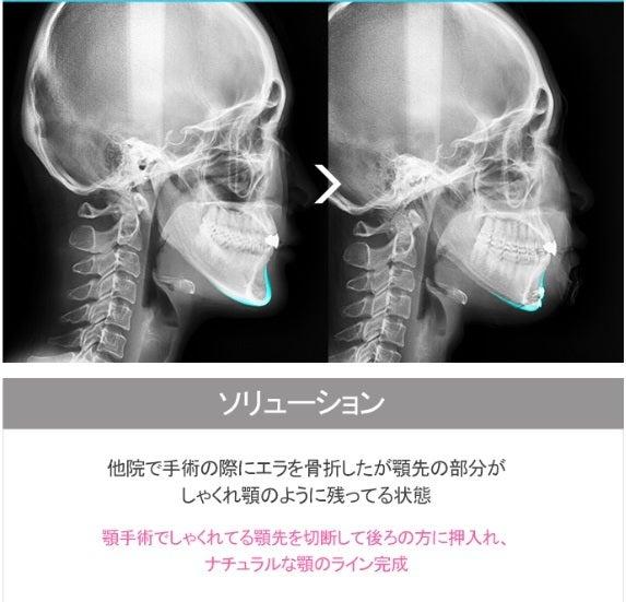 ID美容外科、ミニVライン、Vライン手術、輪郭整形