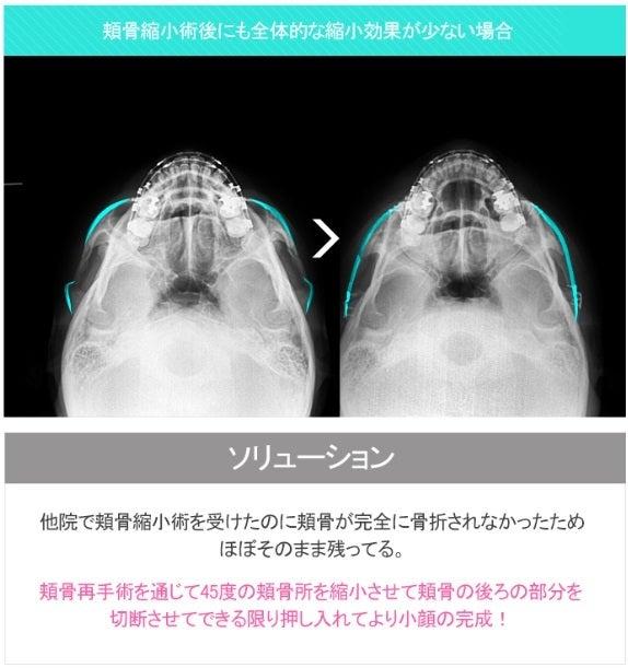 ID美容外科、再手術、輪郭整形