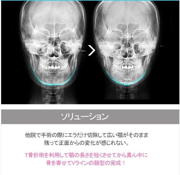 ID美容外科、Vライン手術、エラ削り、小顔