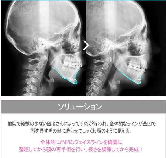 ID美容外科、輪郭整形、両顎手術