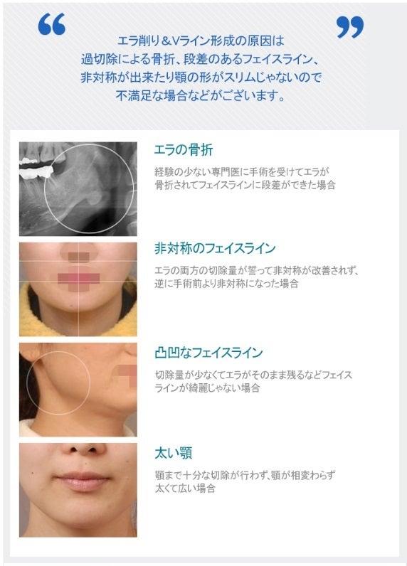 ID美容外科、輪郭形成、再手術