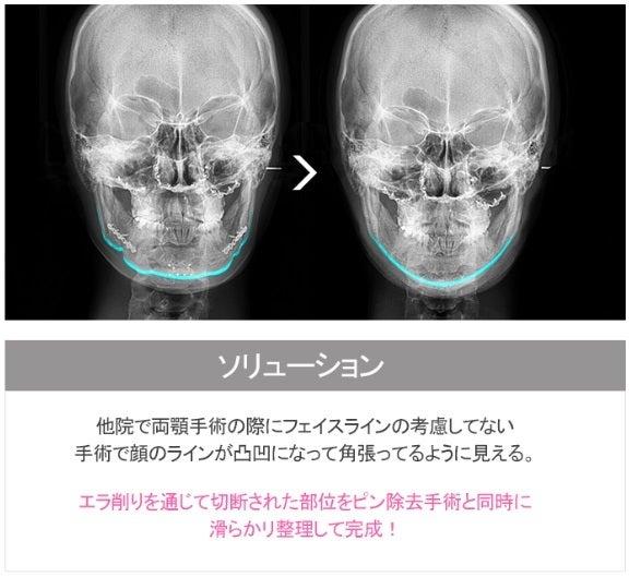 Vライン手術、再手術、両顎手術