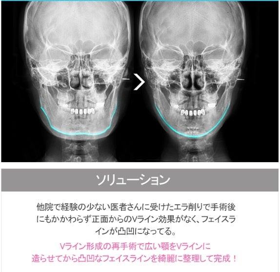ID美容外科、両顎手術。ルフォー。面長