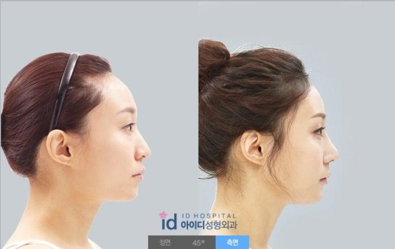 両顎手術、ルフォー、ID美容外科、小顔