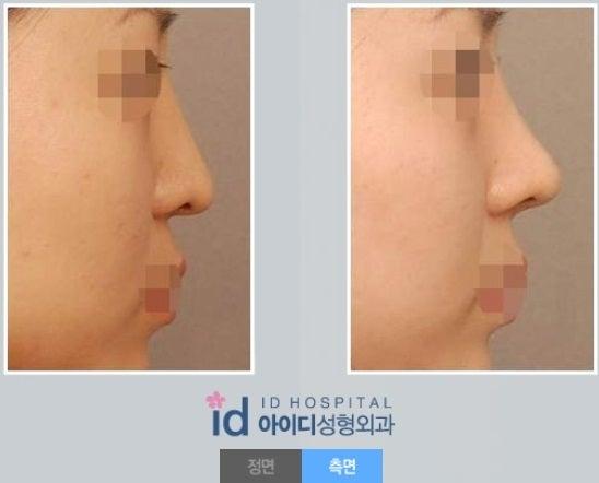 鼻翼、鼻筋、脂肪移植