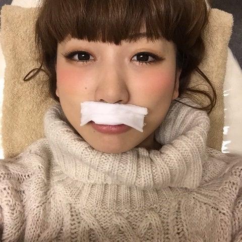 敏感肌の女性におすすめの抑毛クリーム!口周りの …