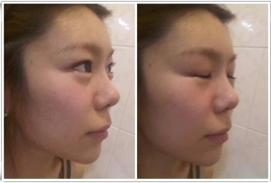 ID美容外科、鼻整形、鼻翼縮小、鼻筋