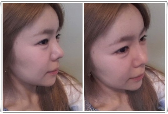 鼻整形、目整形、両顎手術、韓国輪郭