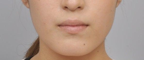 ID美容外科、輪郭整形、Vライン手術、小顔