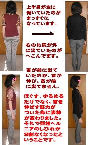 西東京市ひばりヶ丘駅の整体の頸椎ヘルニア四肢痺れ