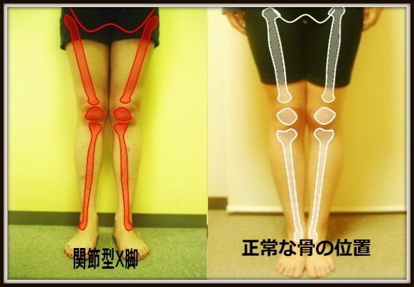 X脚のゆがみ 関節型X脚