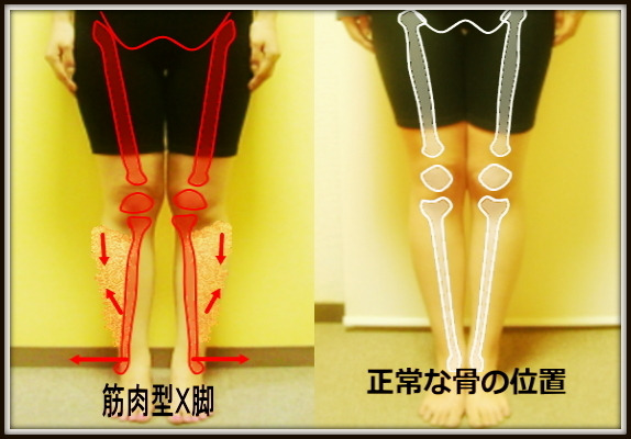 X脚のゆがみ|筋肉型X脚と関節型X脚|中目黒整体レメディオが教える 大転子 骨盤 膝下O脚のなおし方