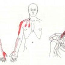 手の痺れや肩の痛みで…