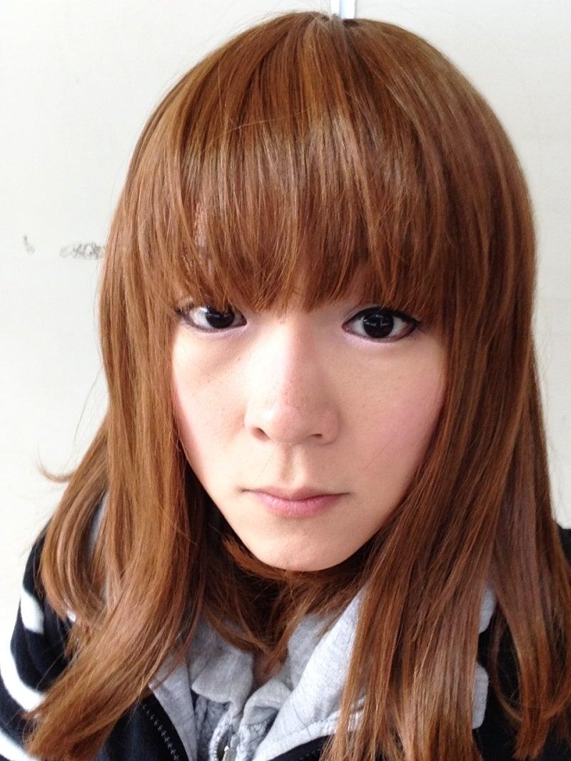 ID美容外科、韓国輪郭整形、日本人整形