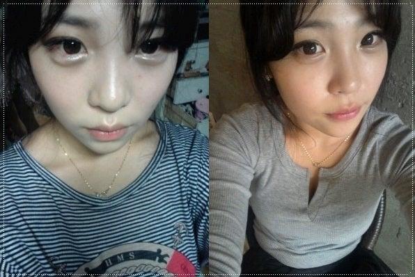 ID美容外科、輪郭専門、鼻整形、鼻翼