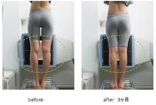 骨盤のゆがみを整えてからの筋力トレーニングにより、O脚X脚に戻らない美脚を目指します。