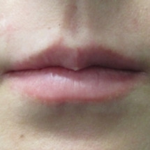 【注入】唇をぷっくり…