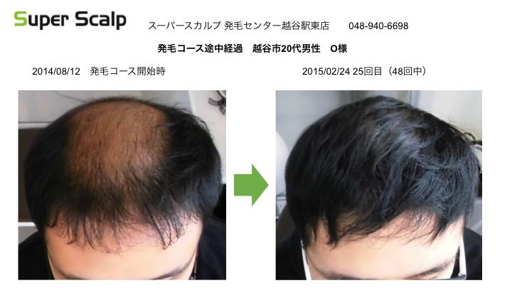 AGA越谷20代男性発毛経過画像