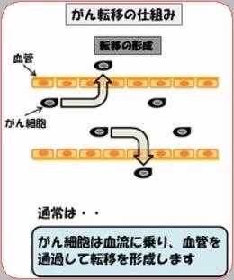 ANPの抗転移作用1