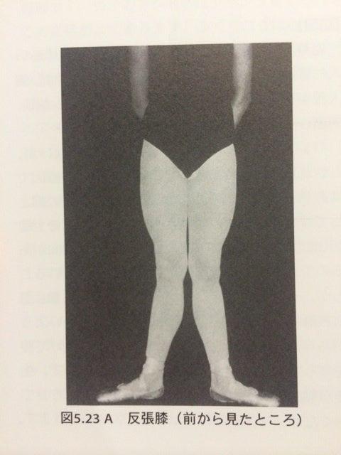 この「バレエのX脚」は一般的な解剖や医療の用語では