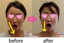 整顔施術例
