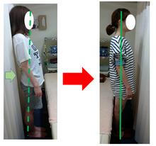 高円寺骨盤矯正で腰痛対策太極堂症例001