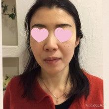 洗顔After