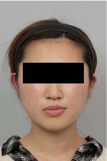 えら削り、頬骨削り、ID美容外科、Vライン手術