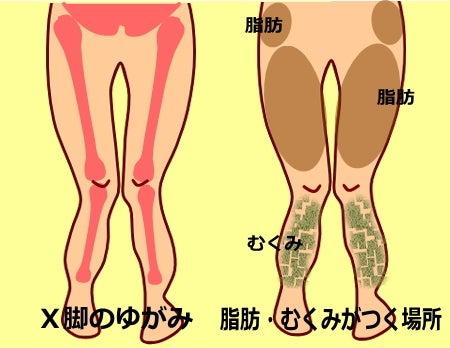 X脚の治し方|X脚・筋肉バランス改善 X脚矯正ストレッチ|中目黒整体レメディオが教える 大転子 骨盤 膝下O脚のなおし方