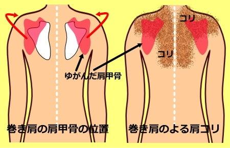 巻き肩|巻き肩のゆがみ、肩こりの原因