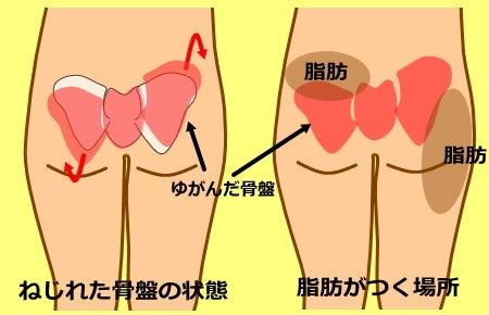骨盤のゆがみ|骨盤の高さが違う 骨盤のねじれの原因