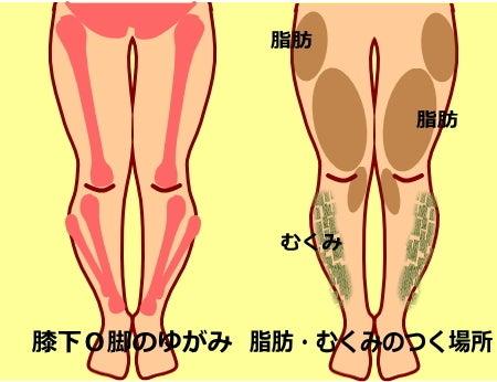 【膝下O脚(XO脚)のゆがみの原因】膝下O脚