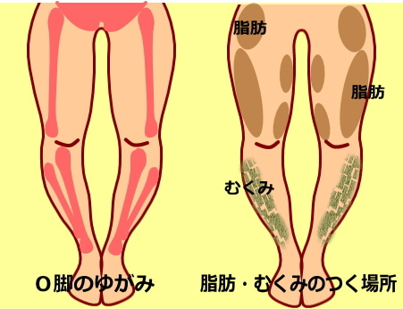 O脚のゆがみ|O脚の筋肉 脂肪 むくみがつく原因