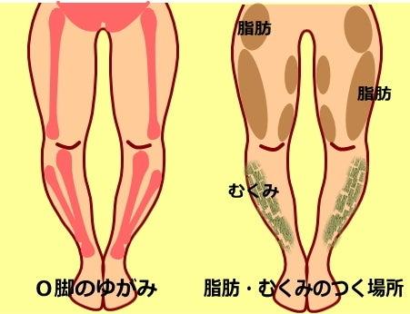 【O脚のゆがみの原因】ゆがみ 筋肉 脂肪 老廃物のつき方