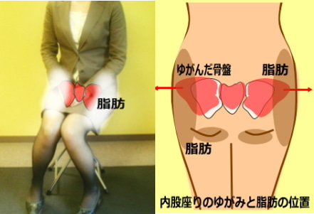 下半身太り 内股座りによる大転子のゆがみ 脂肪がつく原因