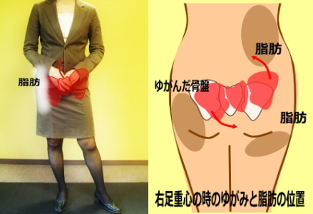 下半身太り 片足重心で立つことによる大転子の出っ張りの原因
