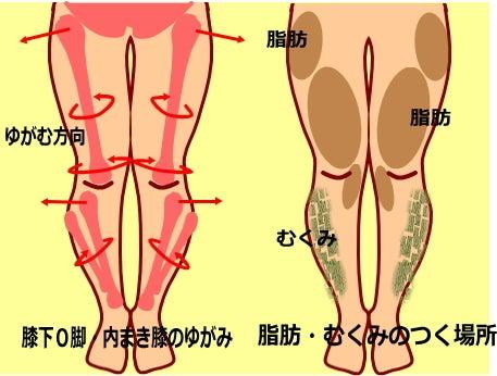 膝下O脚のゆがみ|内巻き膝 膝が内側を向く原因