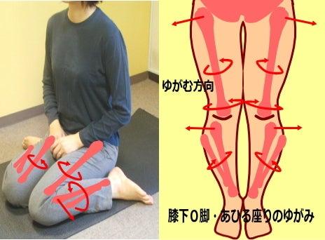 【膝下O脚(XO脚)のゆがみの原因】膝下のゆがみ