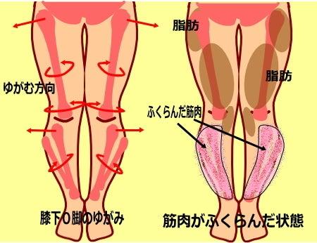 【膝下O脚(XO脚)のゆがみの原因】膝下のゆがみ ふくらみ