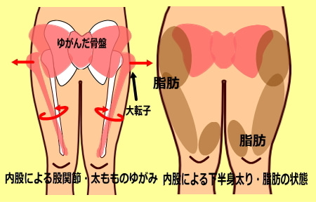 下半身太り 内股による太もも 大転子のねじれの原因