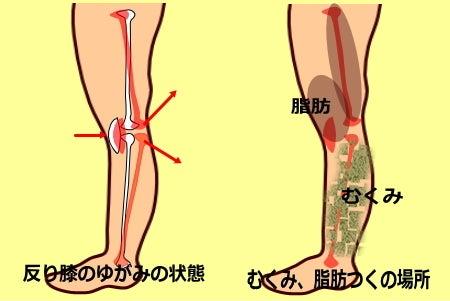 反り膝 反り膝による、ふくらはぎのむくみの原因